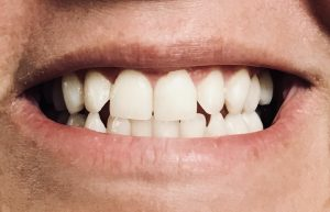 Whitening Sensitive Teeth at Home